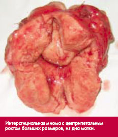 Миома матки симптомы и признаки. Размеры для операции и прогноз для жизни